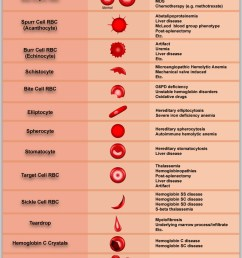 diagram of abnormal red blood cell morphologies in blood [ 817 x 1247 Pixel ]