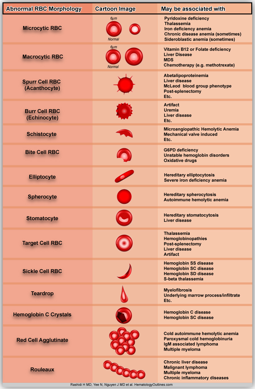 hight resolution of diagram of abnormal red blood cell morphologies in blood