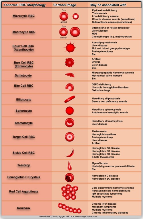 small resolution of diagram of abnormal red blood cell morphologies in blood