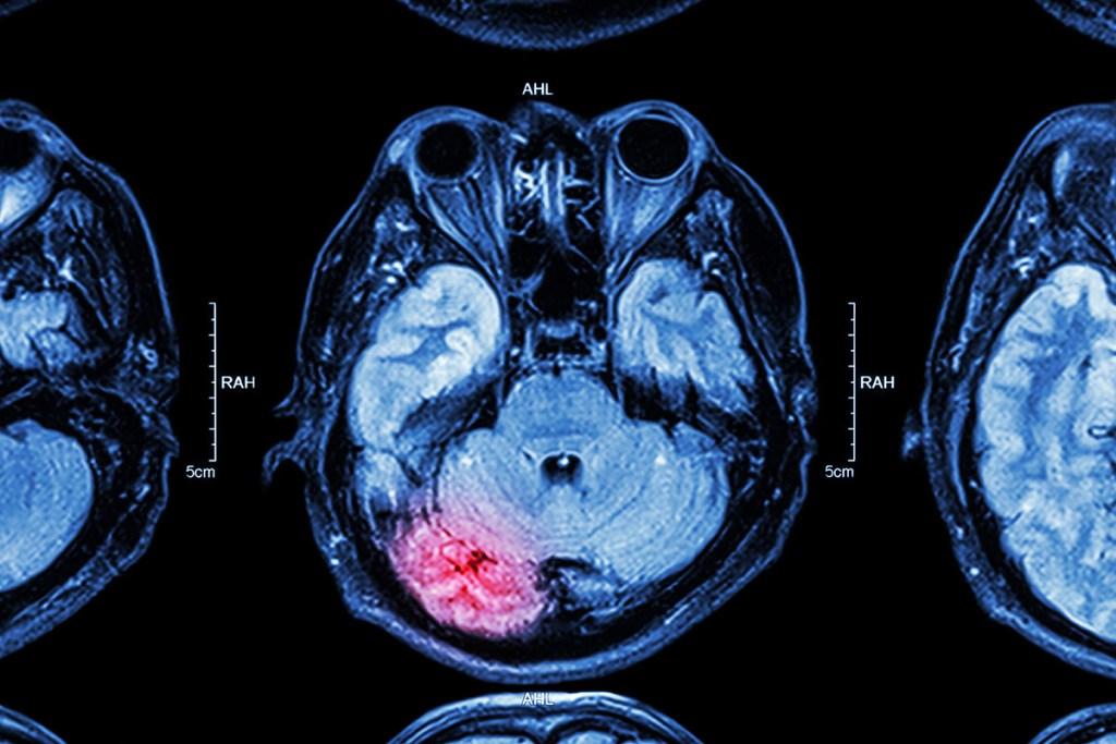 Image médicale du cerveau