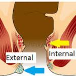 Caracteristicile bolii hemoroidale