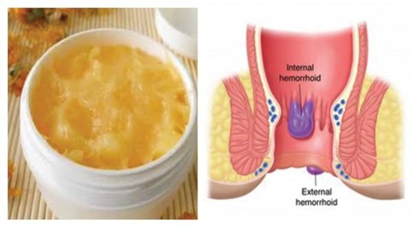 inlatura definitv hemoroizii cu ajutorul cremelor