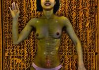 Acupuntura Milenar - Arte Digital: Henrique Vieira Filho - Modelo: Rilda