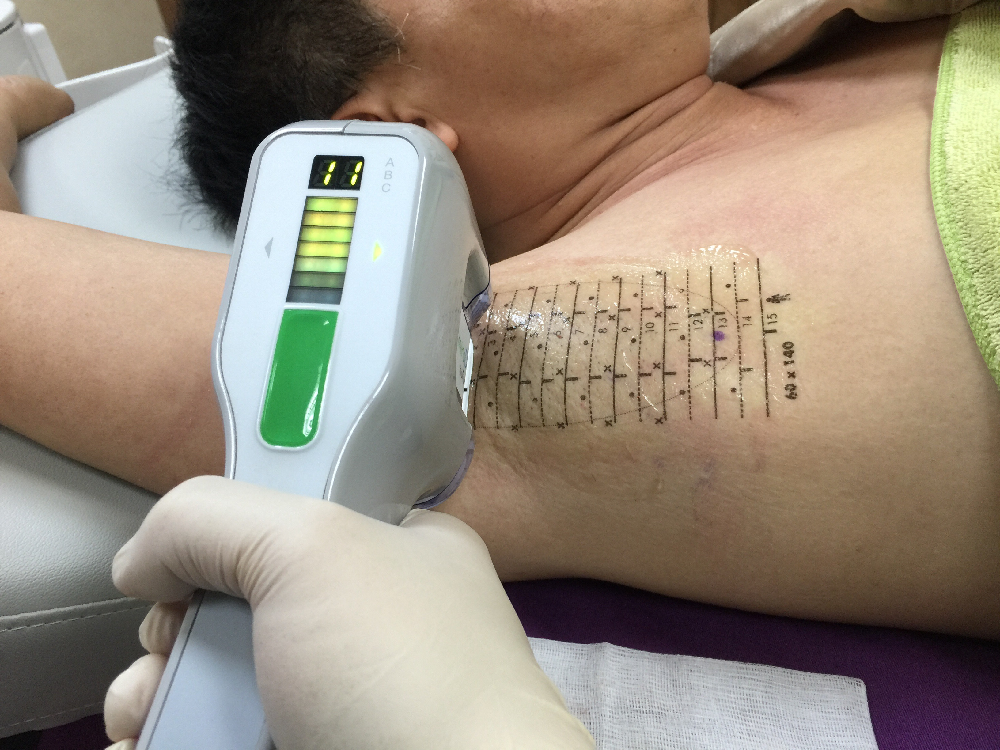 狐臭與油耳 – 黃耀立 皮膚美容外科與植髮醫師 Dr Henry Huang