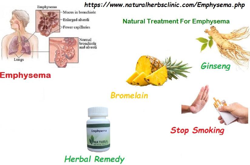 Natural Herbs Clinic - Blog