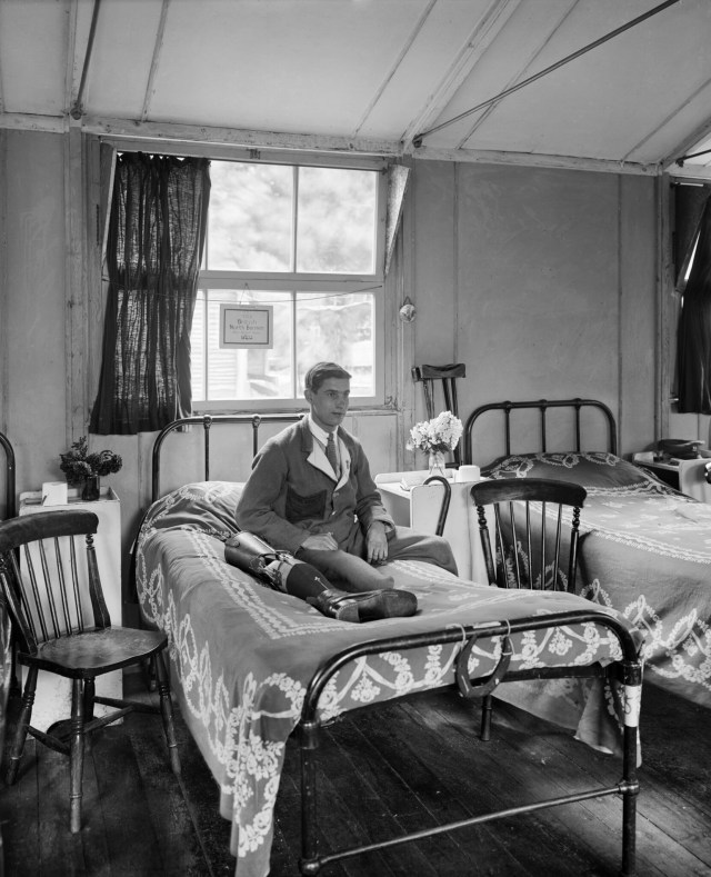 A young man sits next to his prosthetic leg at Queen Mary's Hospital, Roehampton, the main English limb-fitting hospital. (BL24278)