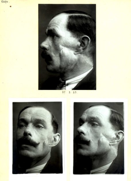 Three images show different angles of a man's face, scarred by a healed  gun shot wound