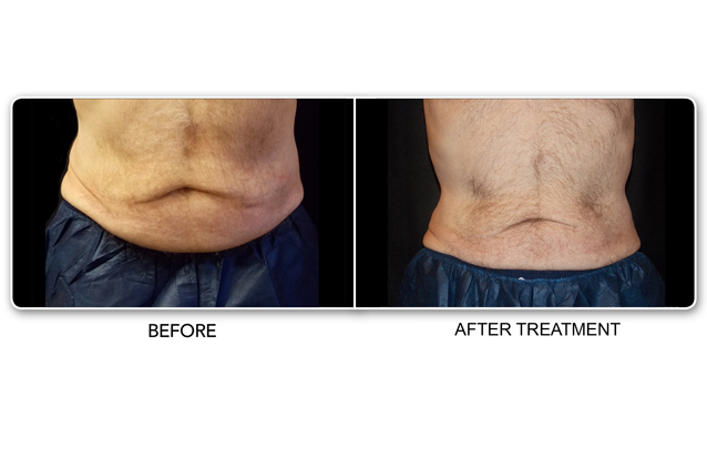 Fat Reduction Stomach