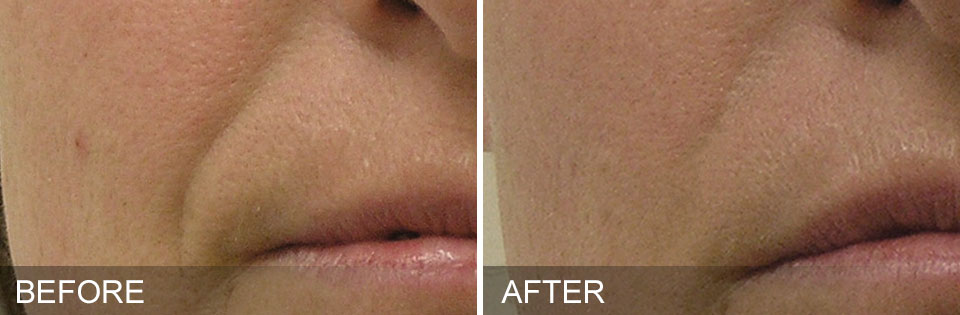 Before and After HyrdaFacial Colleyville Nasolabial Folds Facial Wrinkles disappear