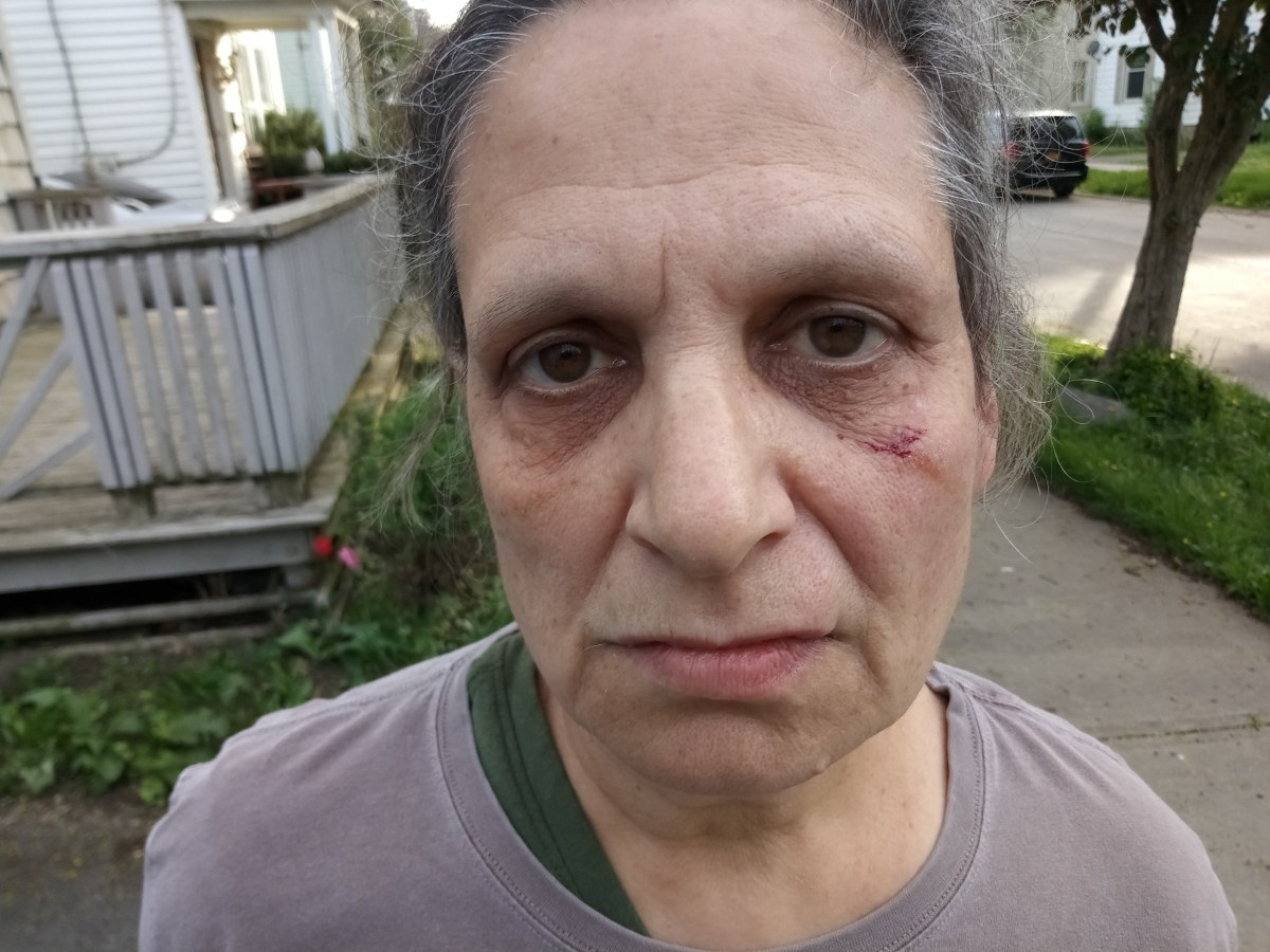 Blogger Beaten by Herkimer Teen Gang Kick Boxer