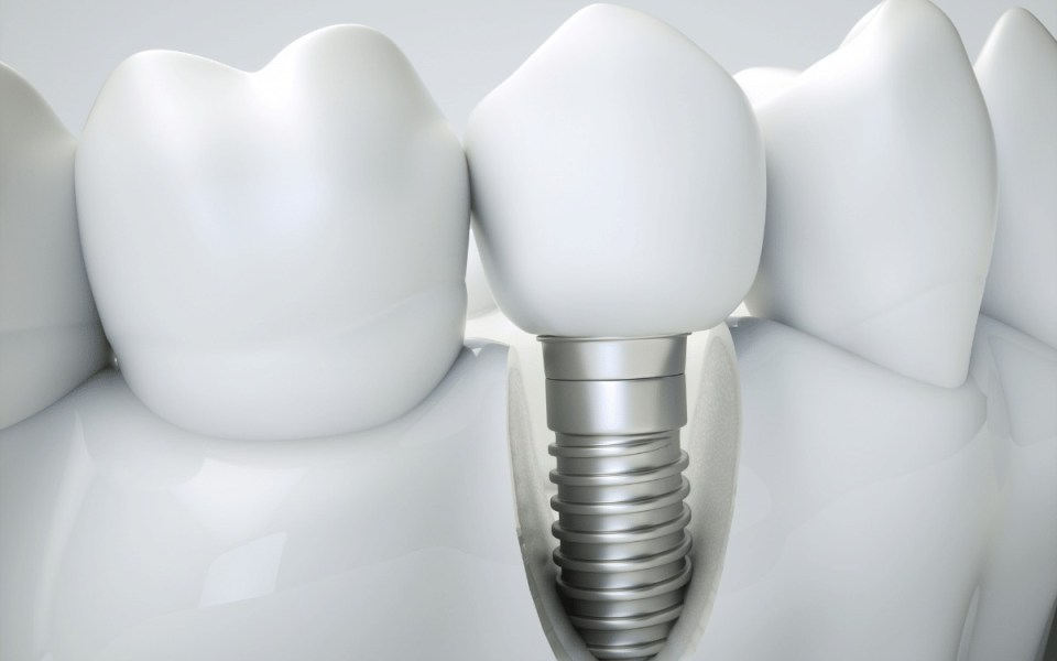 Picture of a 3d model of a dental implant
