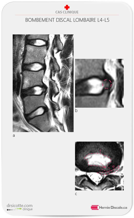 Protrusion Discale Temps Guerison : protrusion, discale, temps, guerison, Symptômes, Hernie, Discale, Lombaire