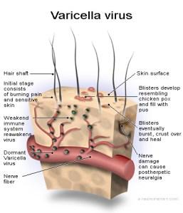 Varicella Zoster Virus | herpesfactorfiction