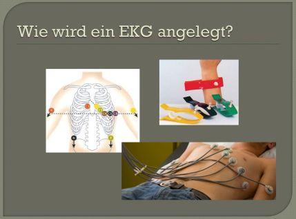 Wie wird ein EKG angelegt?