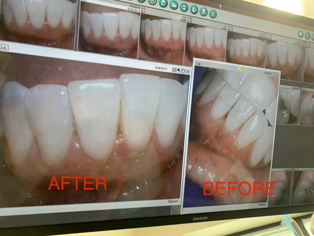 Before And After Gum Graft Surgery