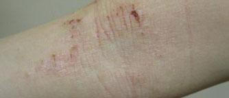 eczema on arm