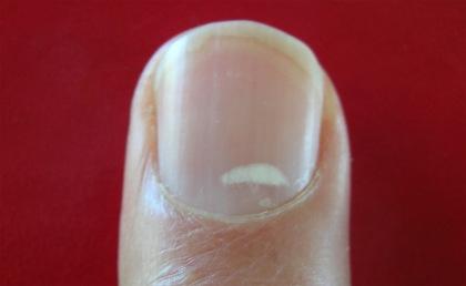 zinc-spot-fingernail