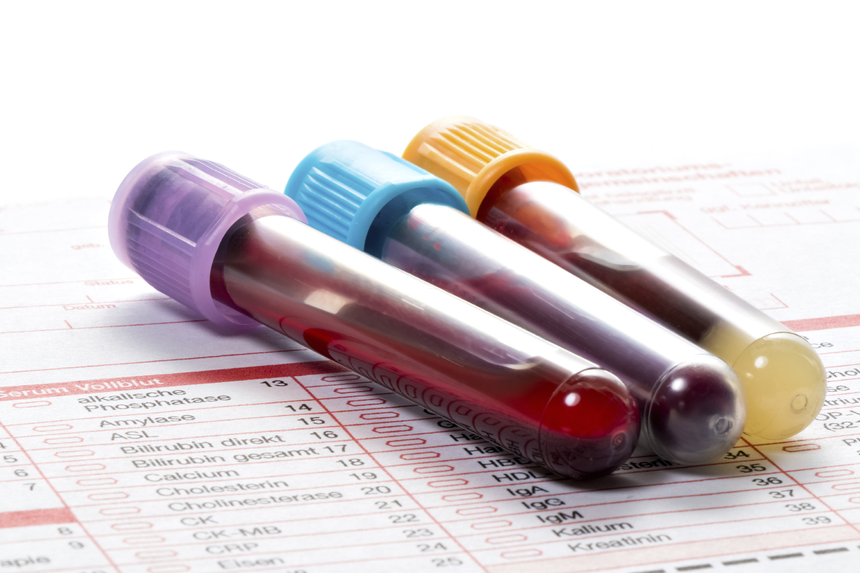 What To Do When Blood Test Results Are Not Quite Normal