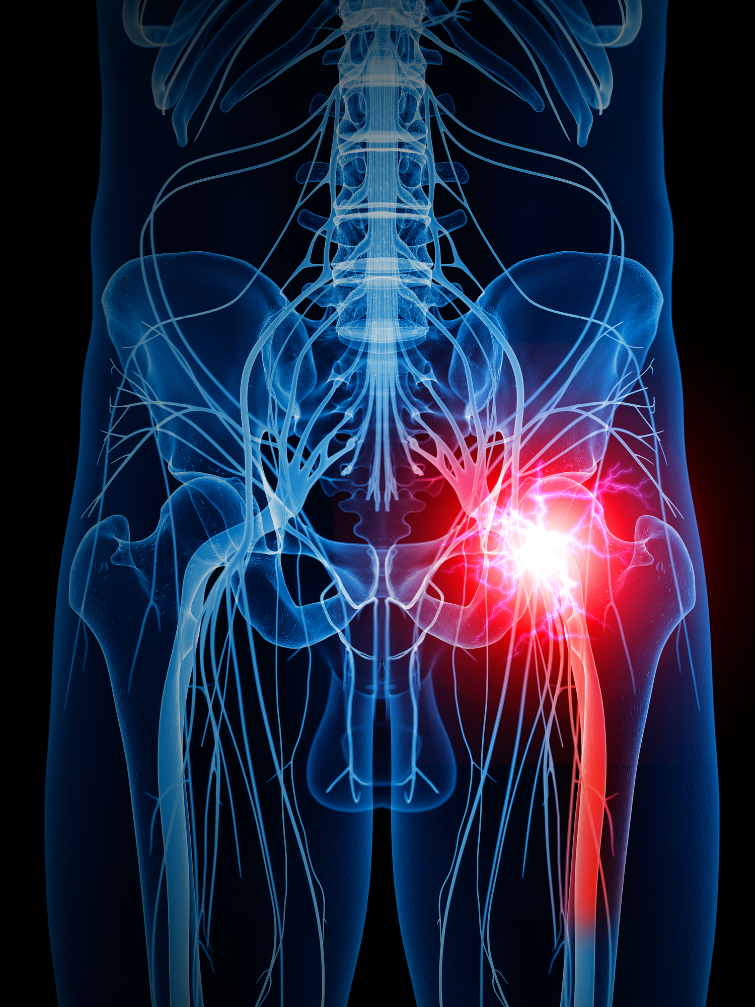Taming the pain of sciatica: For most people, time heals and less is ...