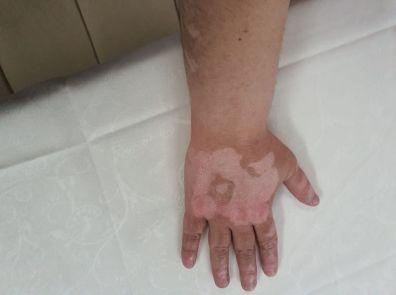 vitiligoda sol elde iyileşme