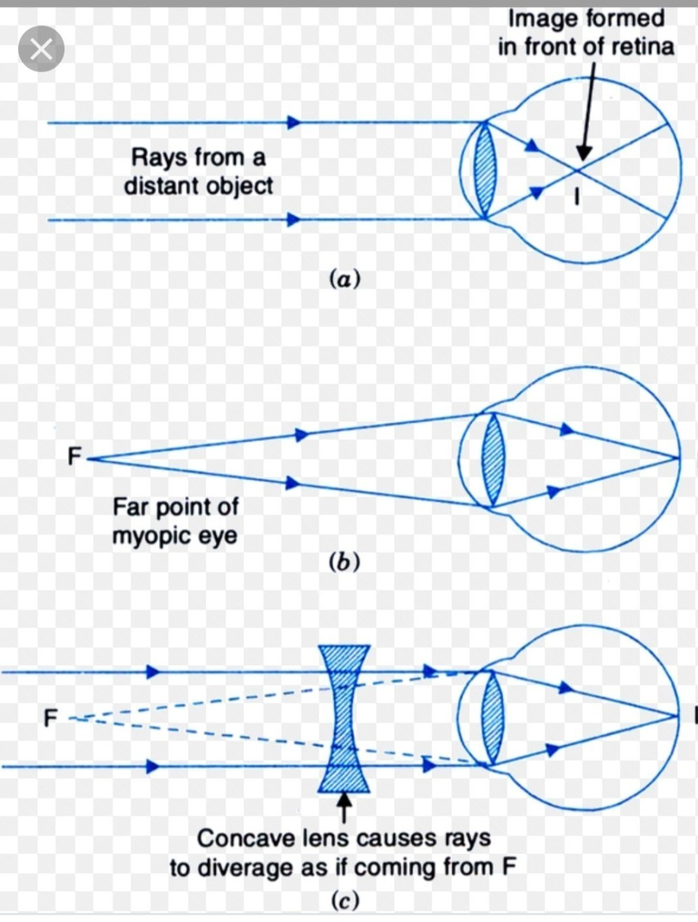 medium resolution of draw ray diagram to show the image formation in i a myopic eye and diagram of correction of myopic eye diagram of a myopic eye
