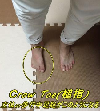 CROW TOE(槌指)