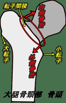 大腿骨頸部骨折 種類