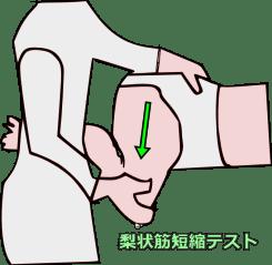梨状筋短縮テスト