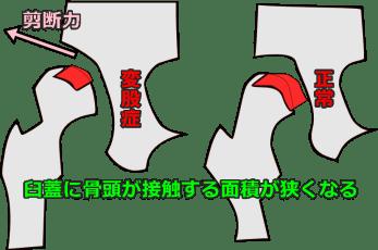 変形性股関節症の股関節