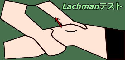 Lachmanテスト