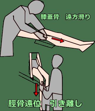 モビライゼーション 足関節背屈制限