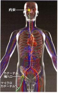 脳血管内カテーテル療法