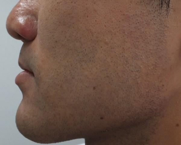 ヒゲ脱毛直後の肌状態、赤み写真2