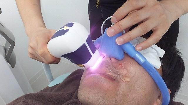 ゴリラクリニックの医療レーザー脱毛体験写真:笑気ガス
