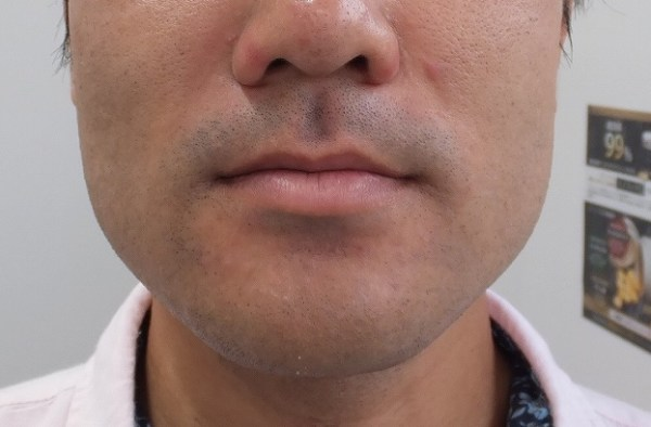ゴリラクリニック:ヒゲ脱毛直後の肌状態、赤み写真