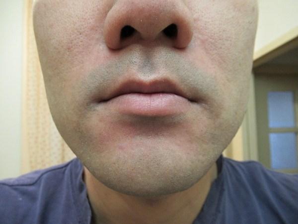 ラムダッシュ3枚刃で剃った後の鼻下ヒゲ