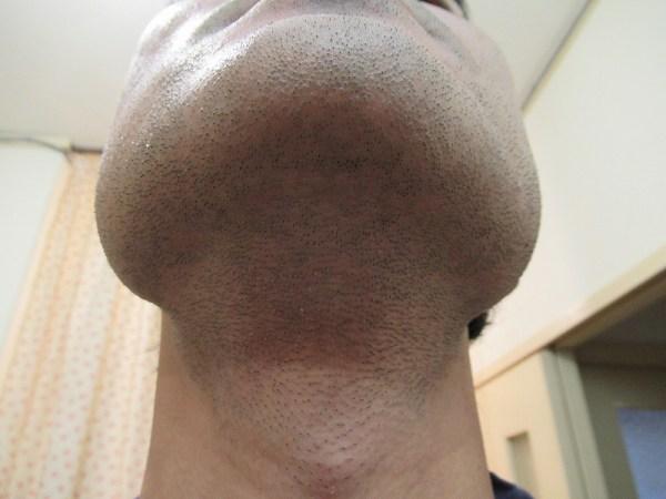 ラムダッシュ3枚刃で剃る前のアゴ下ヒゲ