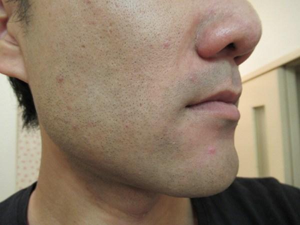 ブラウンシェーバー7でヒゲを剃った後のホホのヒゲ