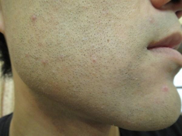 ブラウンシェーバー7でヒゲを剃った後のホホのヒゲアップ写真