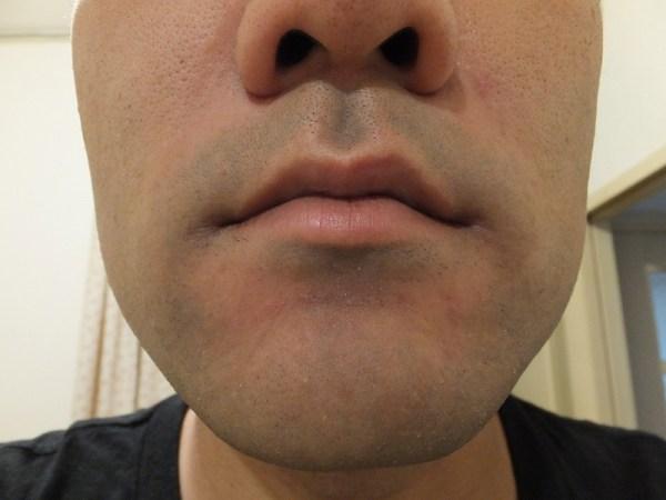 ヒゲ脱毛前のヒゲの状態:鼻下