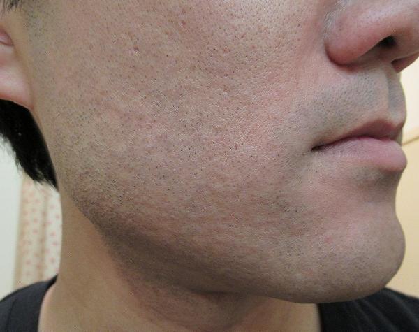 腫れる?赤みは?3回目のレーザー脱毛後のヒゲ・ホホ