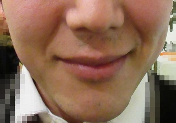 ヒゲ永久脱毛完了:ツルツルになった友達の写真・画像