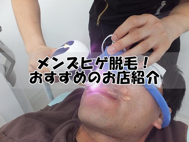 ヒゲ脱毛おすすめのお店紹介!