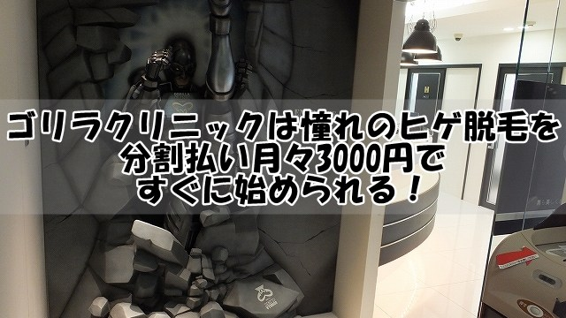 ゴリラクリニックは憧れのヒゲ脱毛を分割払い月々3000円ですぐに始められる!