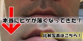 ヒゲ脱毛経過比較写真:鼻下