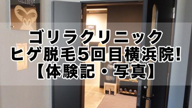ゴリラクリニックヒゲ永久脱毛5回目横浜院!【体験記・写真】
