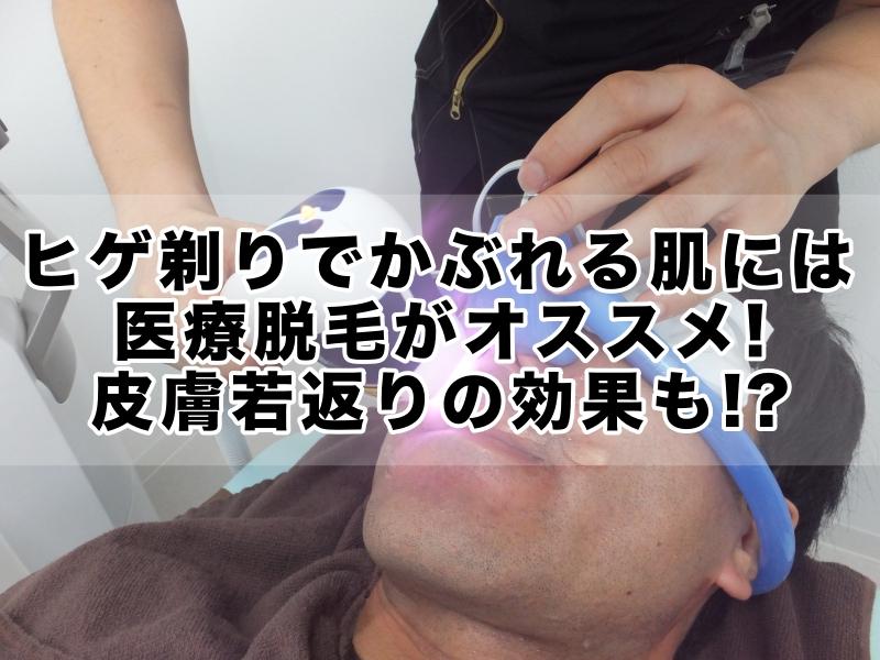 ヒゲ剃りで荒れるかぶれる肌には医療脱毛がオススメ!皮膚若返りの効果も!?