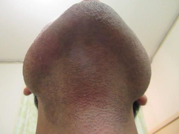 ヒゲ脱毛6回目翌日の肌状態:ゴリラクリニック2