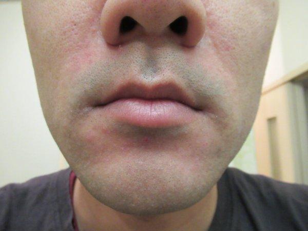 モバイルシェーバーブラウンm-90で剃った後の鼻下
