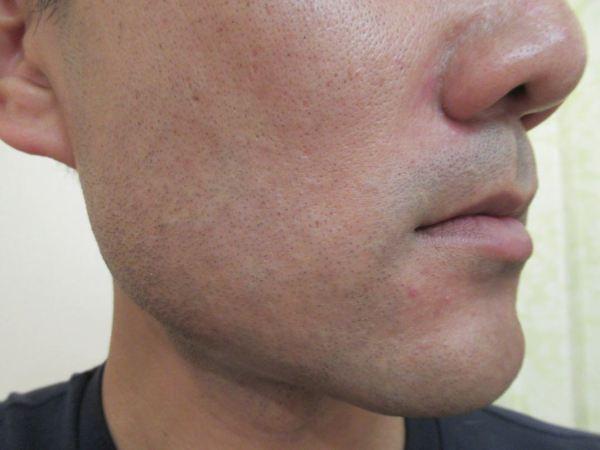 ゴリラクリニック8回目のヒゲ脱毛直後の頬